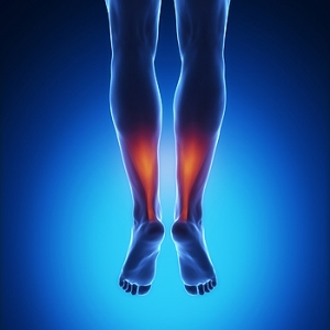 What Can Cause an Achilles Tendon Injury?
