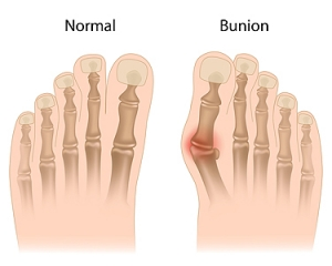 Treatment Options For Bunion