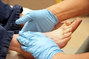 Diabetes and Foot Care
