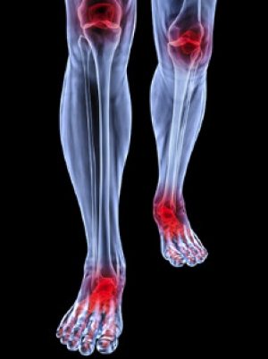 Reducing Inflammation in Arthritic Feet