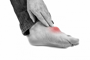 Excess Uric Acid May Cause Gout