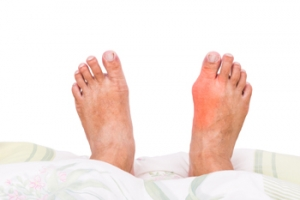 What Is Causing My Painful Bunion?