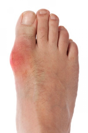 Foods That May Cause Gout