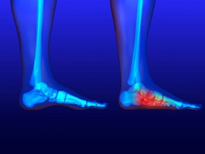 Low Muscle Tone in the Feet May Be Related to Flat Feet