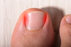 Does My Child Have an Ingrown Toenail?