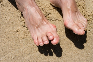 How Footwear Can Lead to Hammertoes