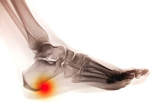 Does Age Encourage the Formation of Heel Spurs?
