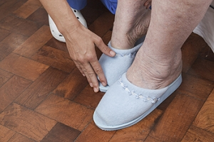 What is Diabetic Foot?