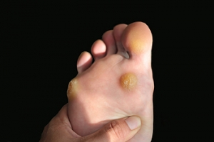 Plantar Warts Are Caused by a Virus